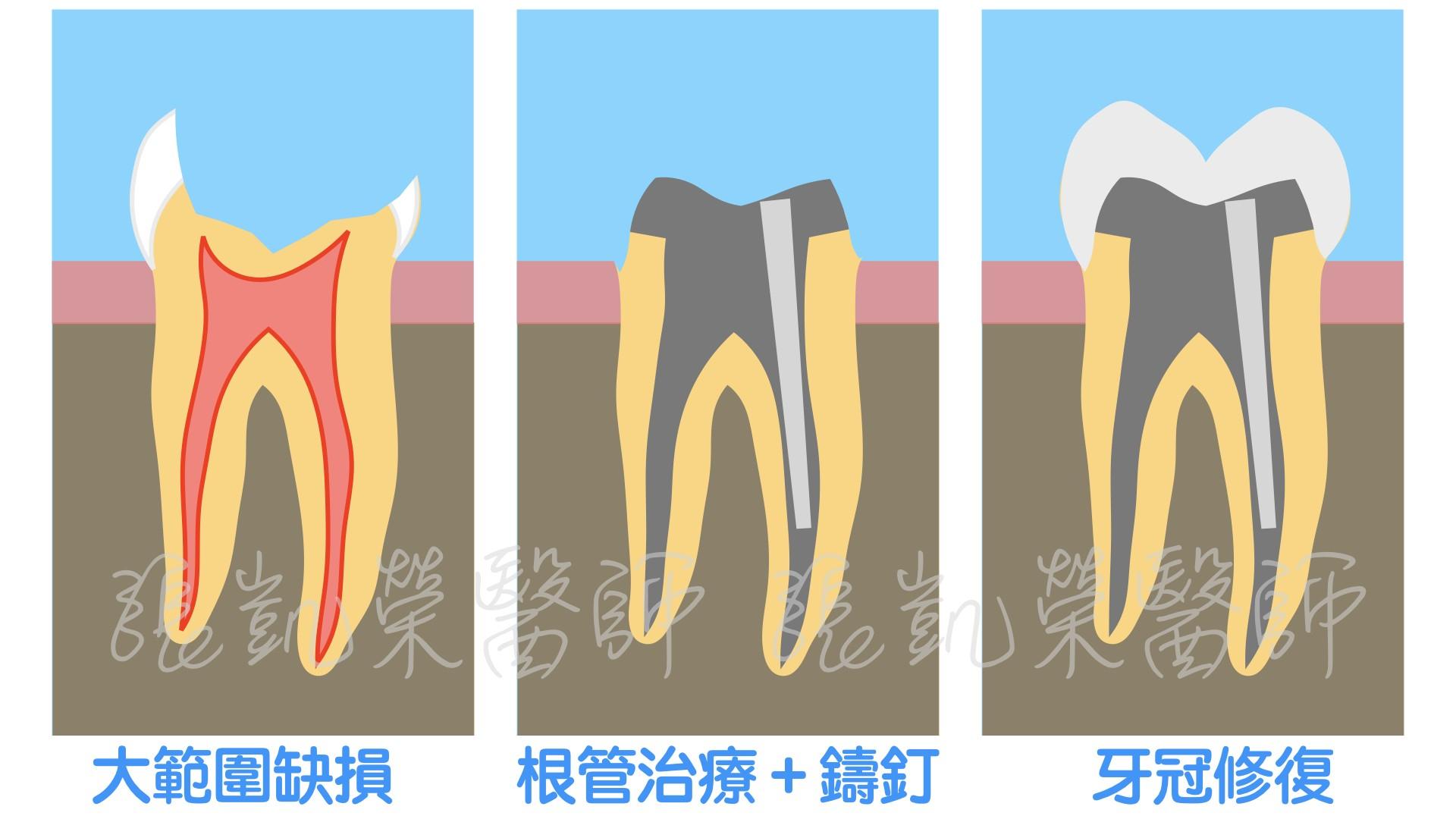大範圍蛀牙怎麼辦呢? part I:填補好嗎?做假牙好嗎?