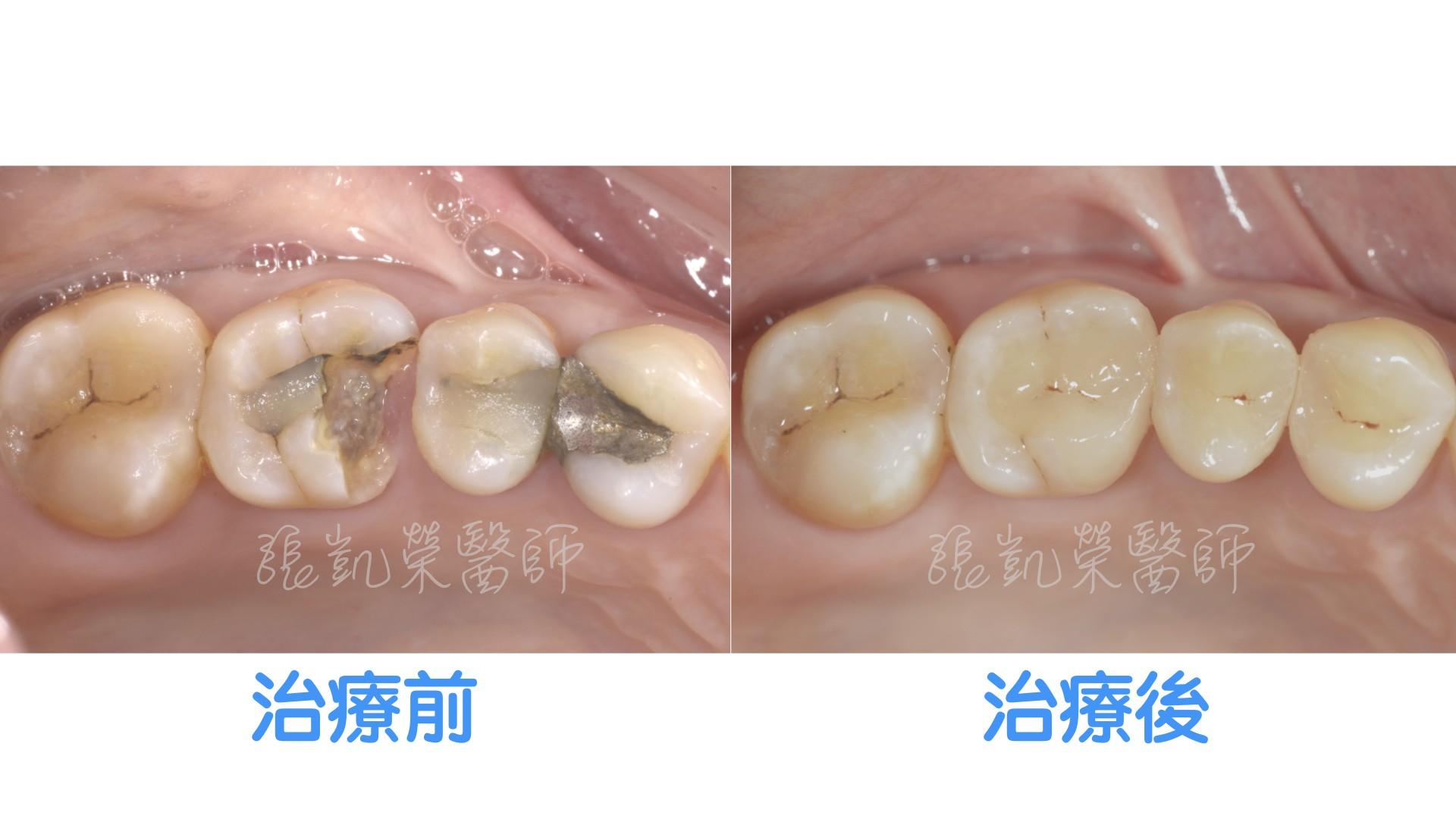 大範圍蛀牙怎麼辦呢? part II:兼具強度、保護、微創的全瓷嵌體
