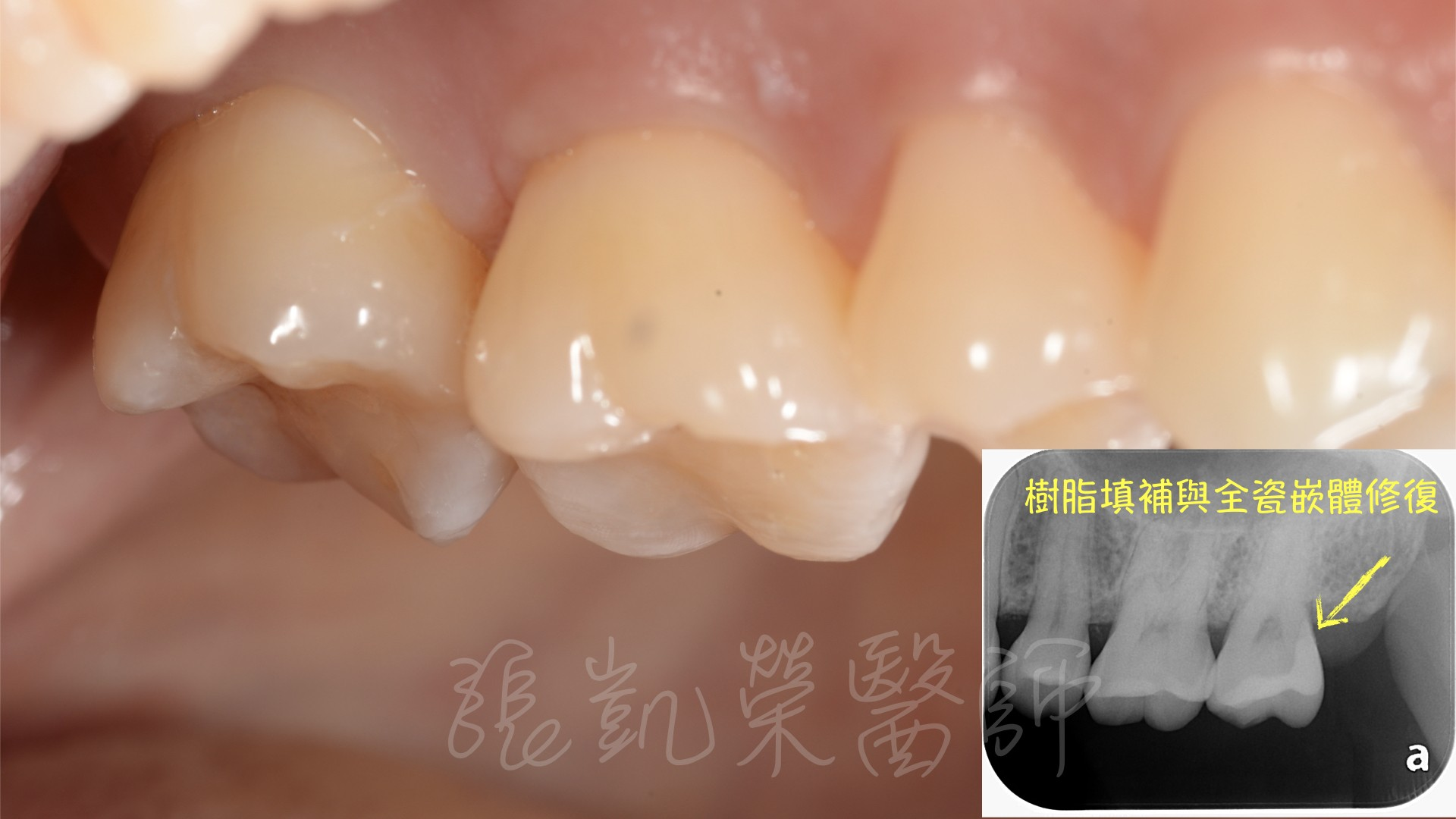 智齒周圍食物阻塞,不易清潔,造成大臼齒後方深部蛀牙,利用樹脂全瓷嵌體修復。
