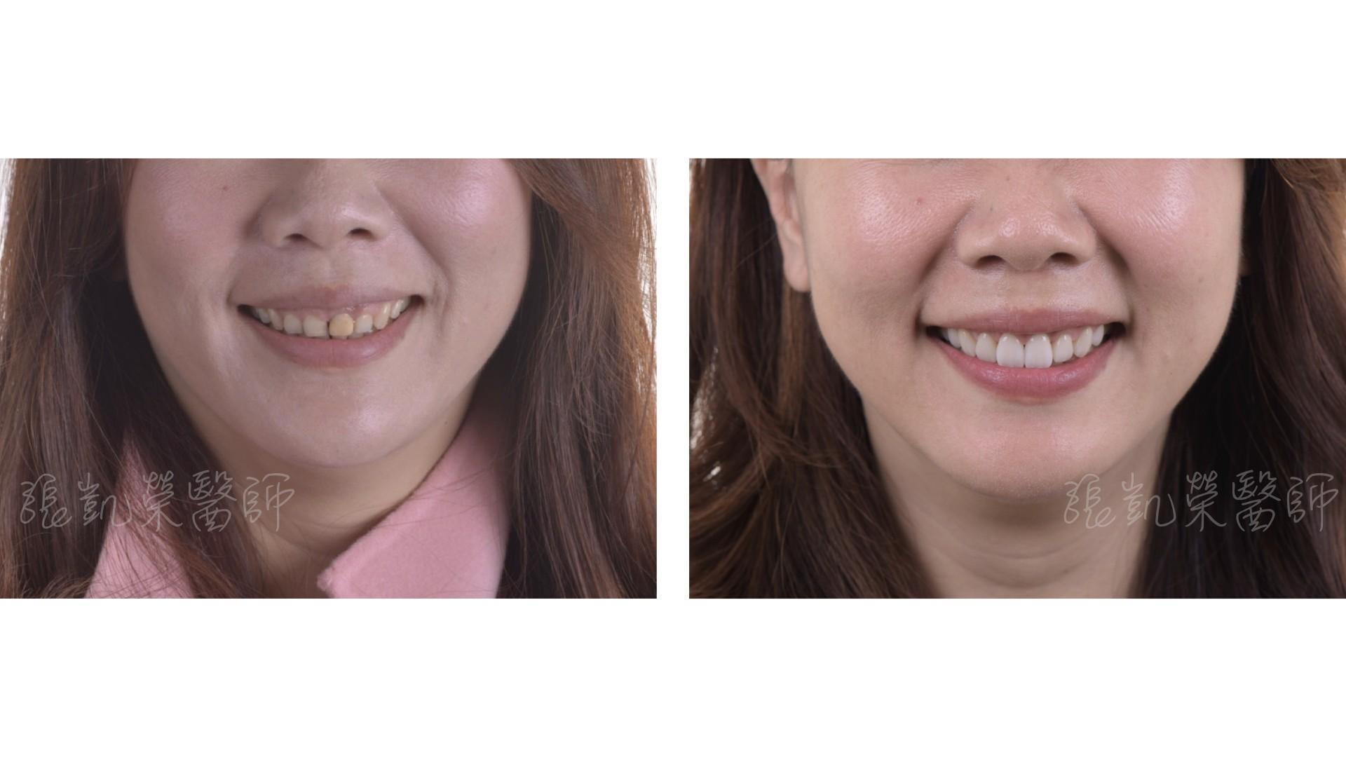 牙冠增長術 part I---改善笑齦的牙齦整形
