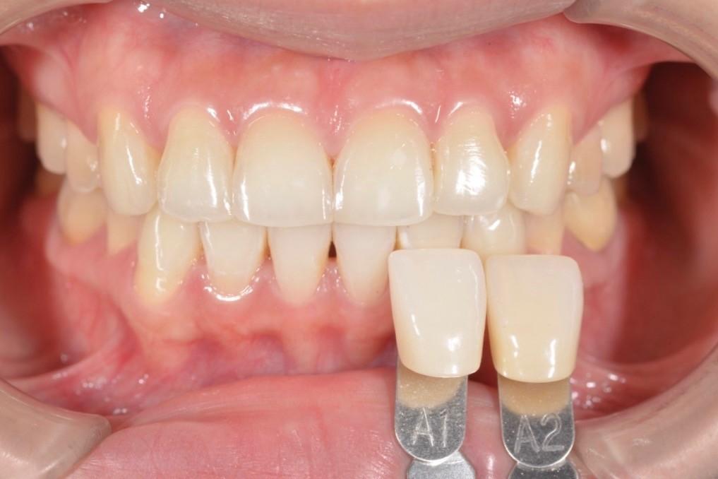 牙齒美白可以到美白幾個色階呢?