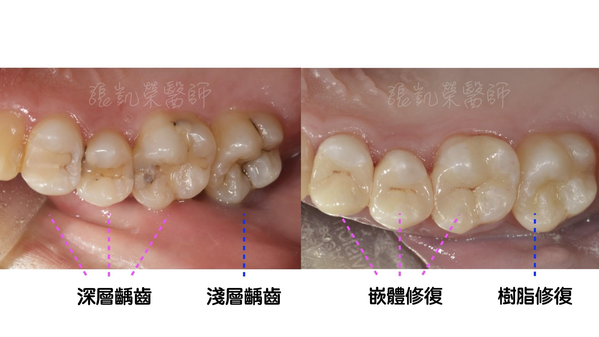 牙齒有酸酸的感覺,牙齒是怎麼了呢?  partI :蛀牙