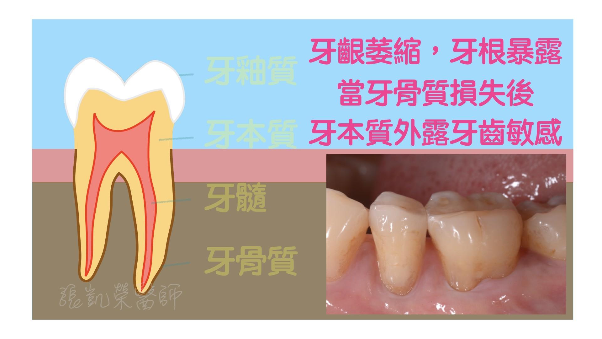 牙齒有酸酸的感覺,牙齒是怎麼了呢?  partII:牙齦萎縮