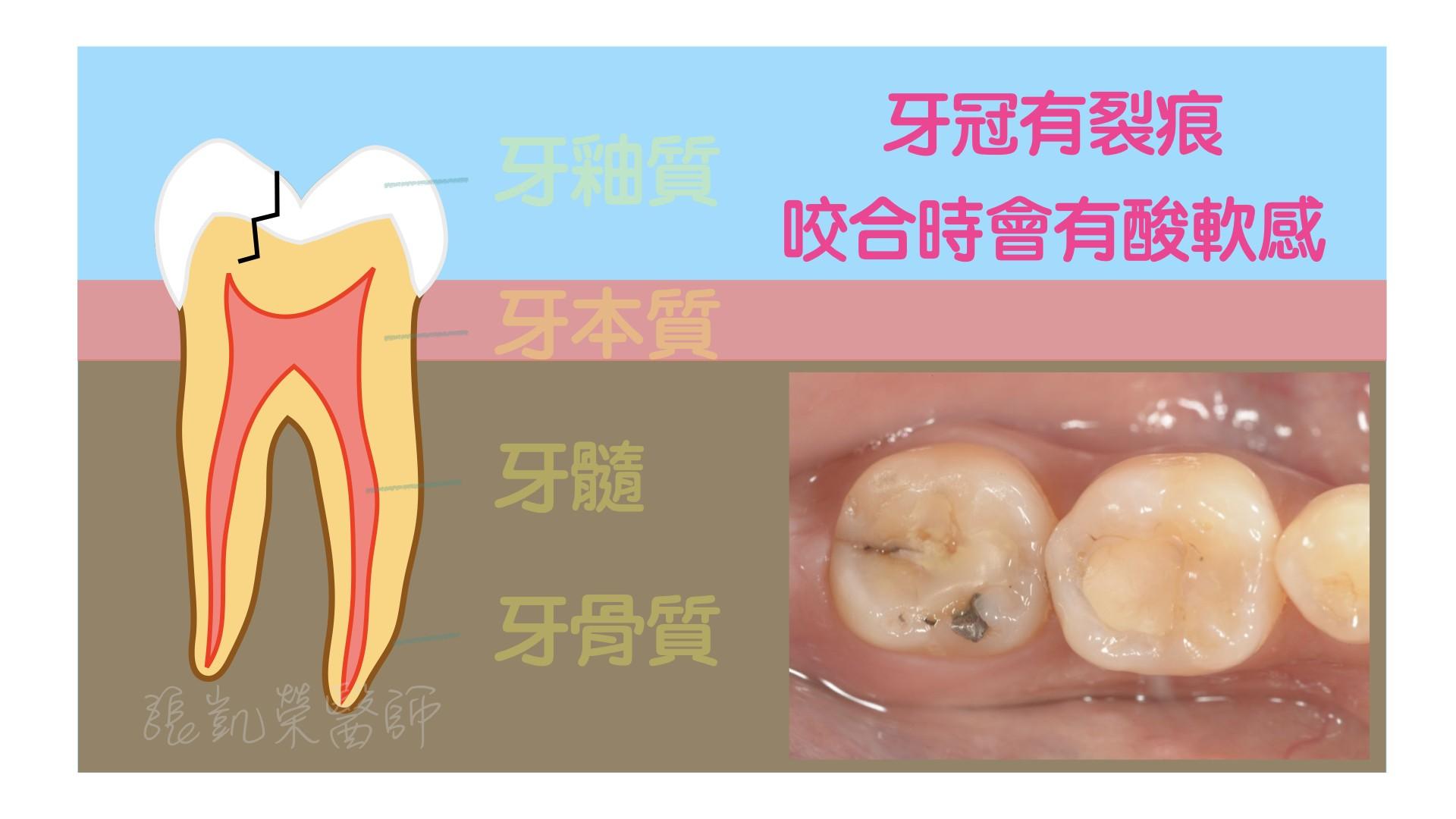 牙齒有酸酸的感覺,牙齒是怎麼了呢? PART III:牙冠裂了