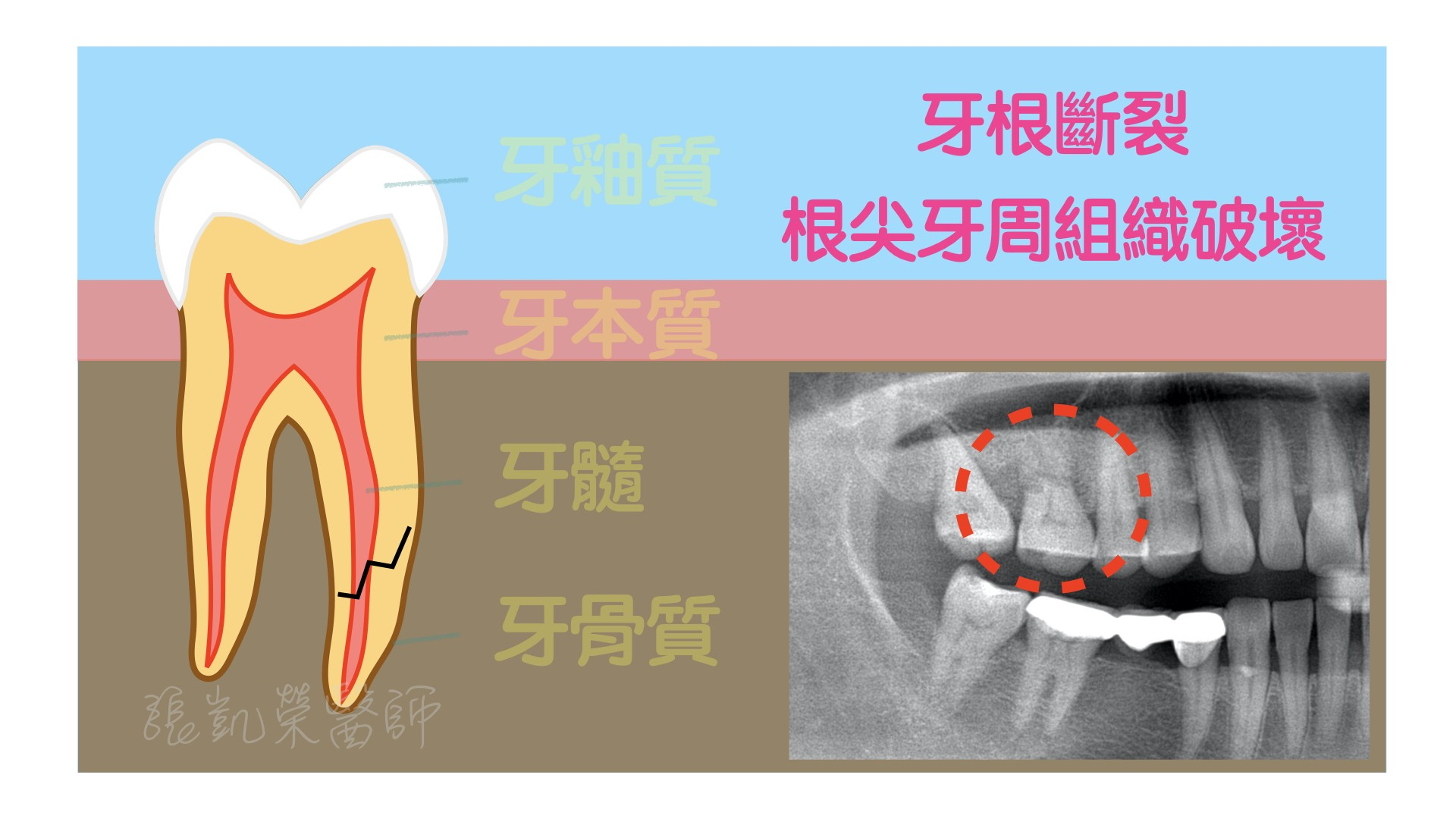 牙齒有酸酸的感覺,牙齒是怎麼了呢? part IV:牙根裂掉