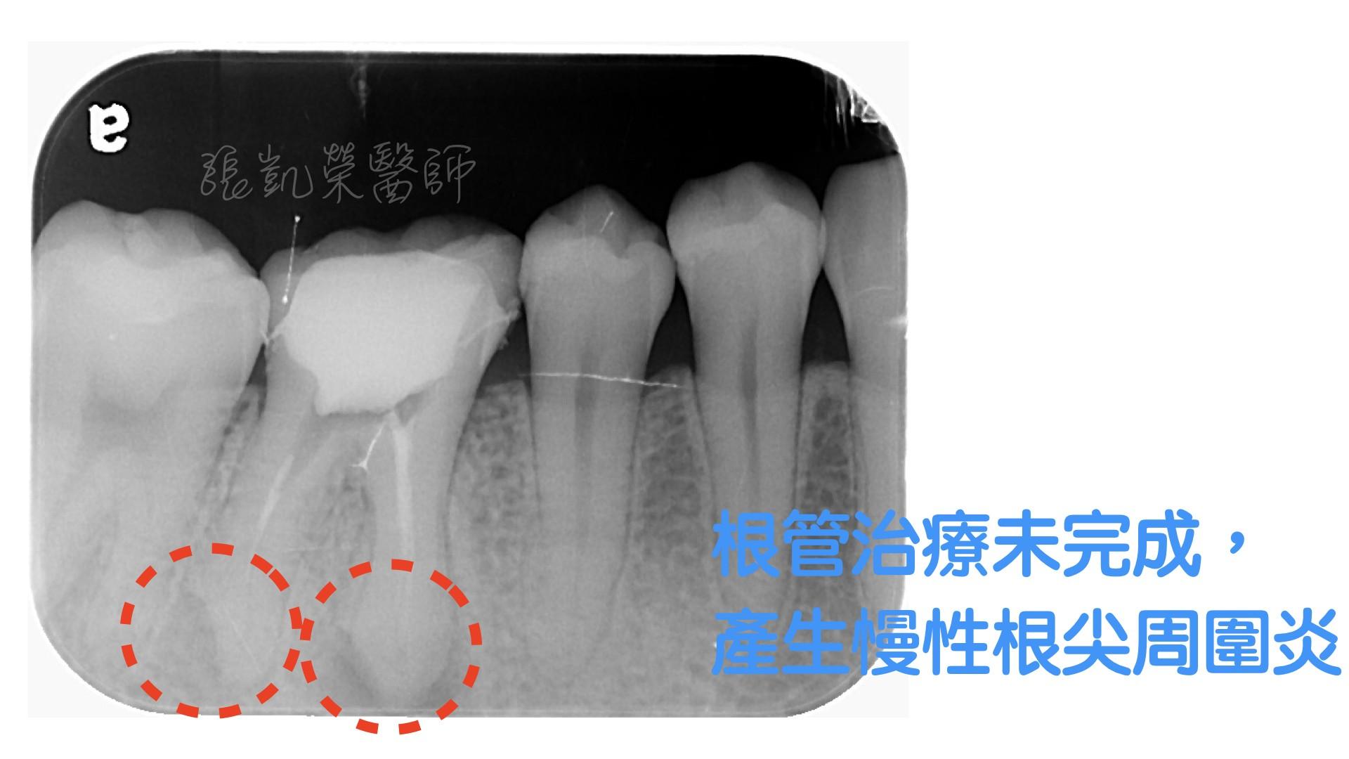 牙齒有酸酸的感覺,牙齒是怎麼了呢?  part V:根管未完成,根尖發炎