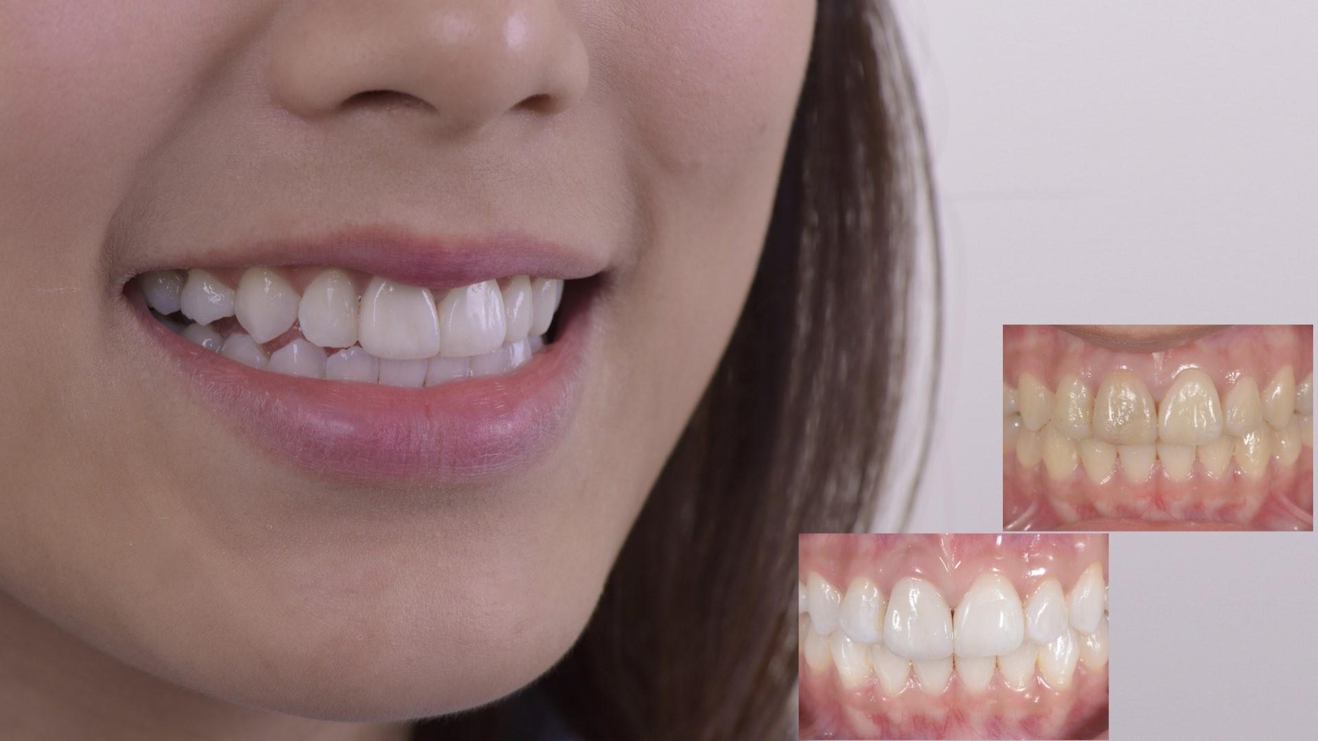 牙齒變黑了怎麼辦?part I:根管治療後,牙齒顏色變深了。