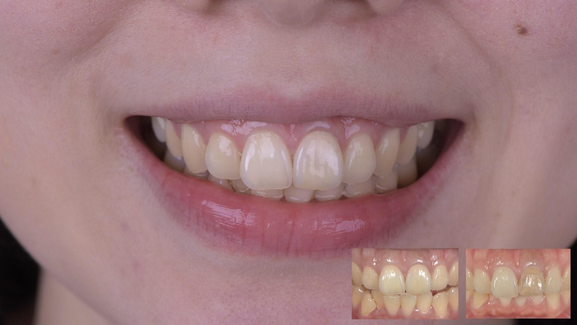 牙齒變黑了怎麼辦?part II:根管治療後,不只牙齒顏色變深,牙齦也黑黑的。