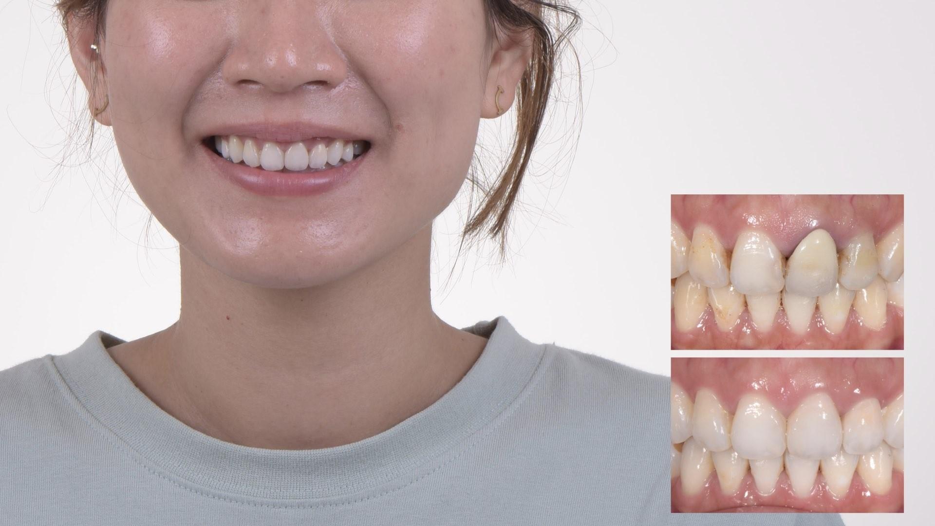 牙齒變黑了怎麼辦?part IV:瓷牙邊緣氧化,造成顏色變深