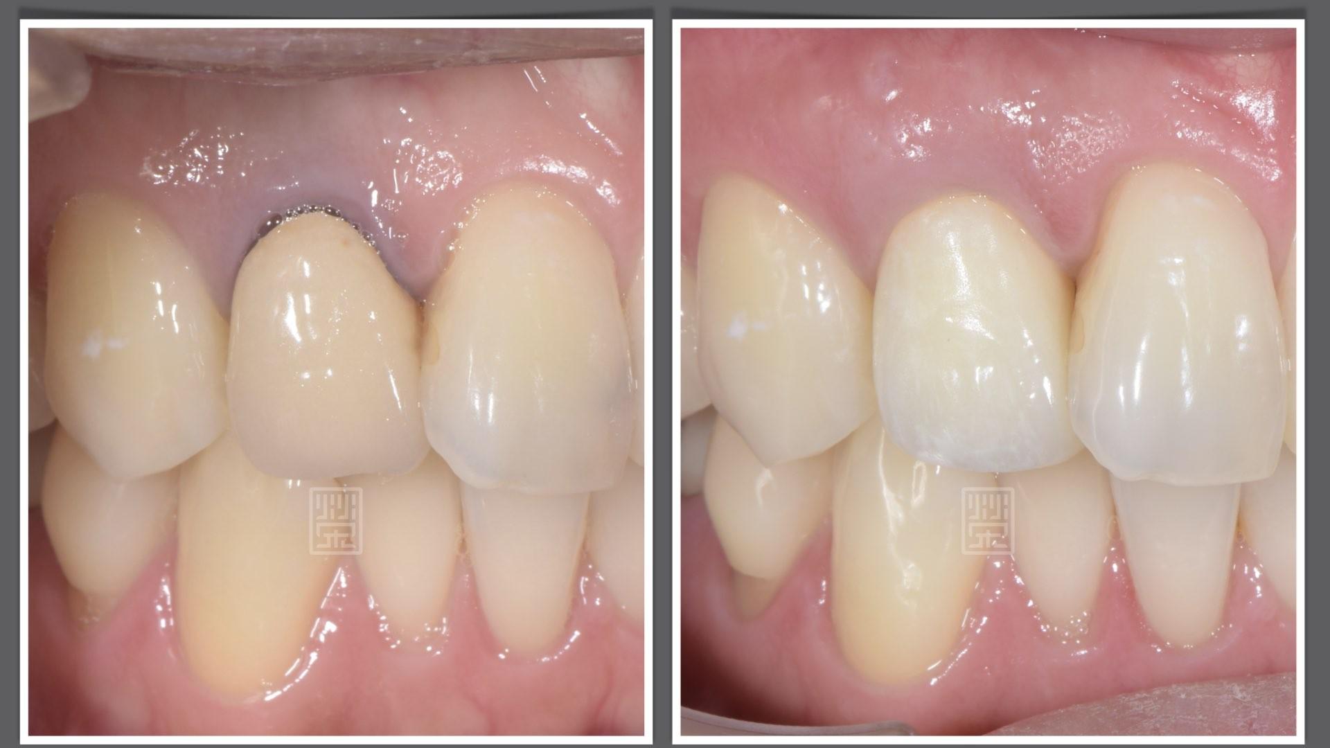 牙齒變黑了怎麼辦?part V:牙根變色,但內有個大鑄釘,拿下來牙根傷害太大