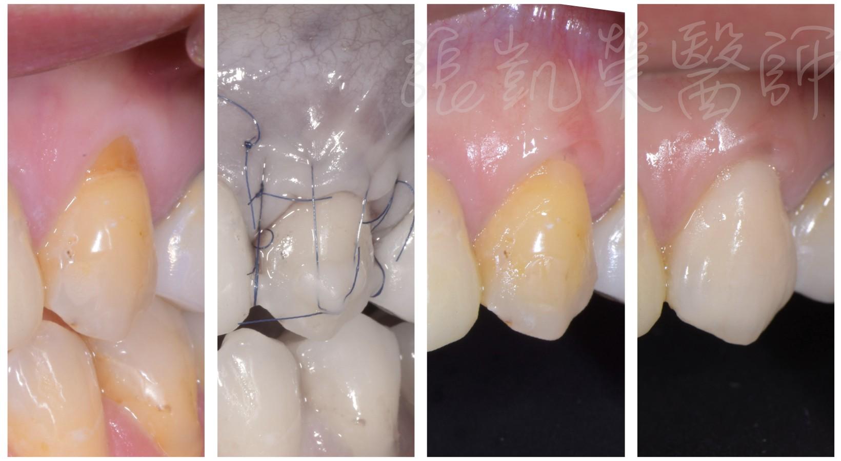 牙齦萎縮了,牙齒變長了怎麼辦?