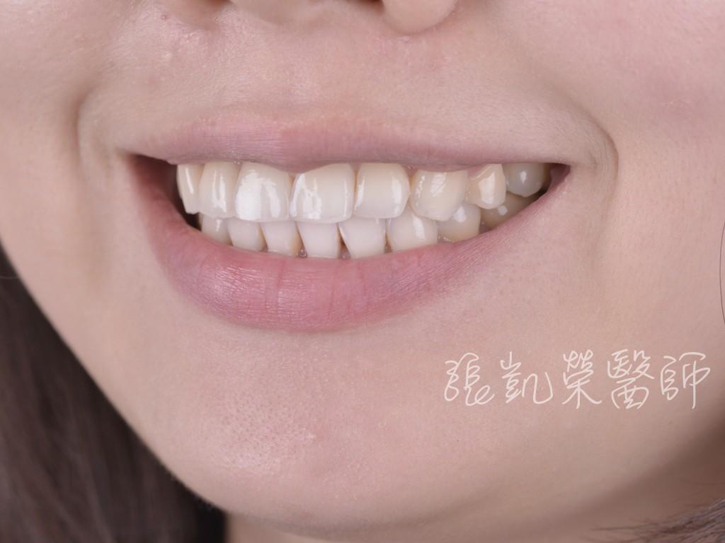牙齒美白三部曲(三)---牙齒美白步驟