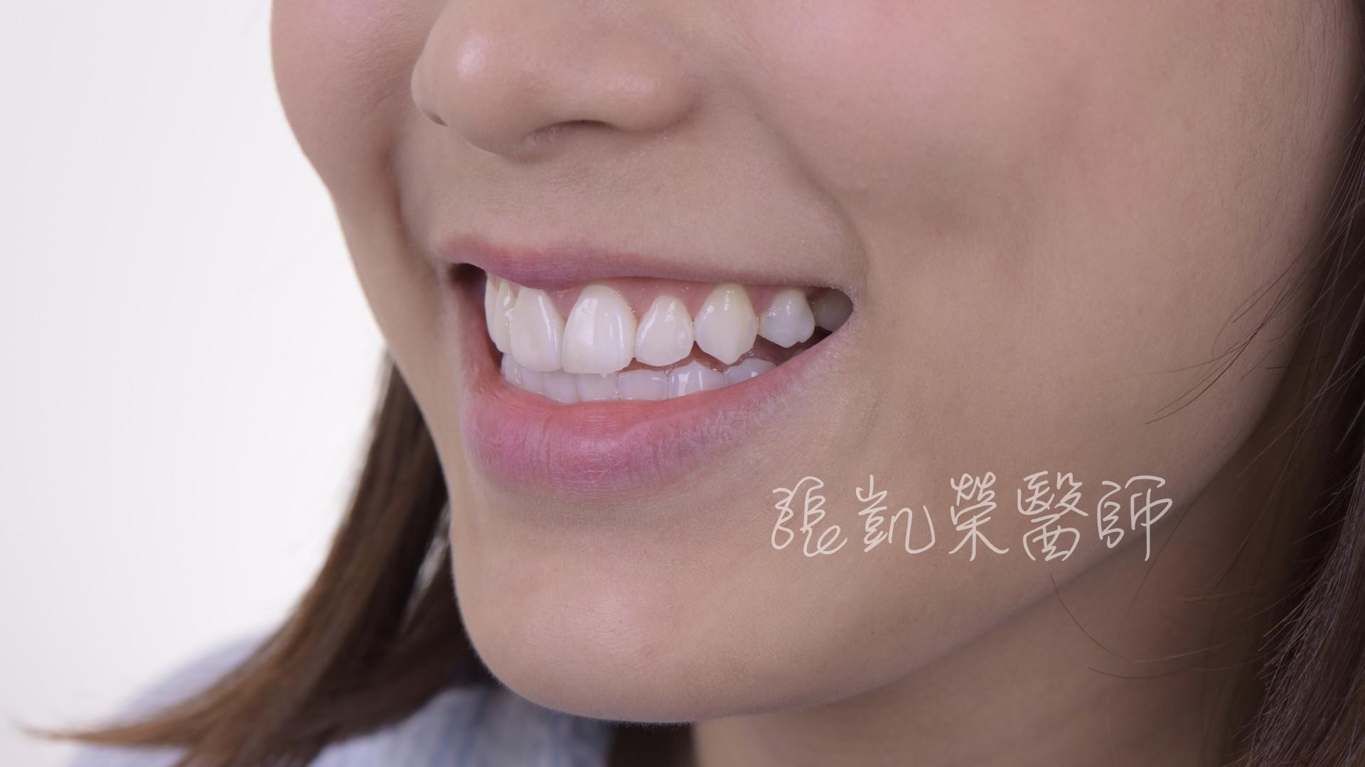 有假牙能不能美白呢?