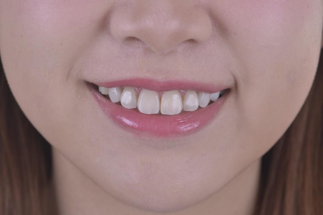 牙齒美白三部曲(二)---牙齒美白有哪幾種?
