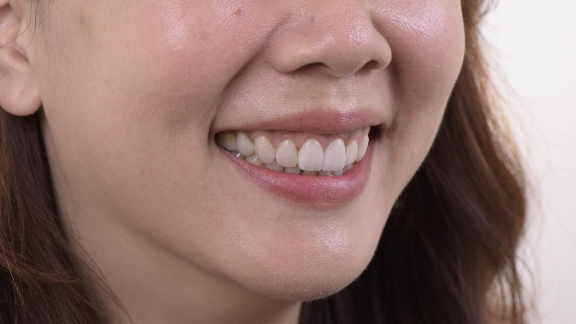 美白全瓷貼片可以不磨牙齒嗎?