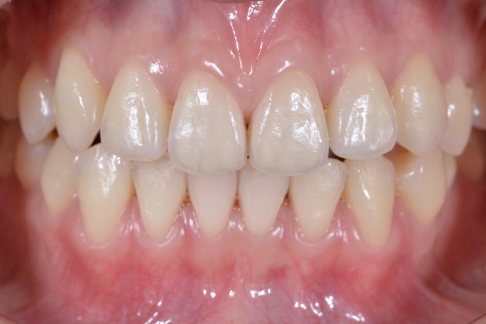 美白後牙齒怎麼還會有點黃黃的