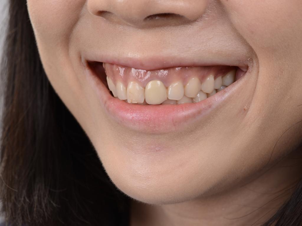 牙齦露出多、假牙不美觀
