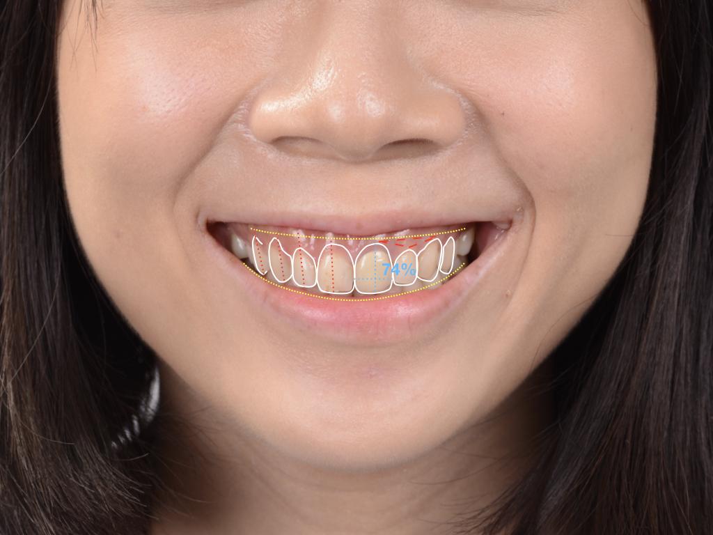 數位微笑設計(DSD)