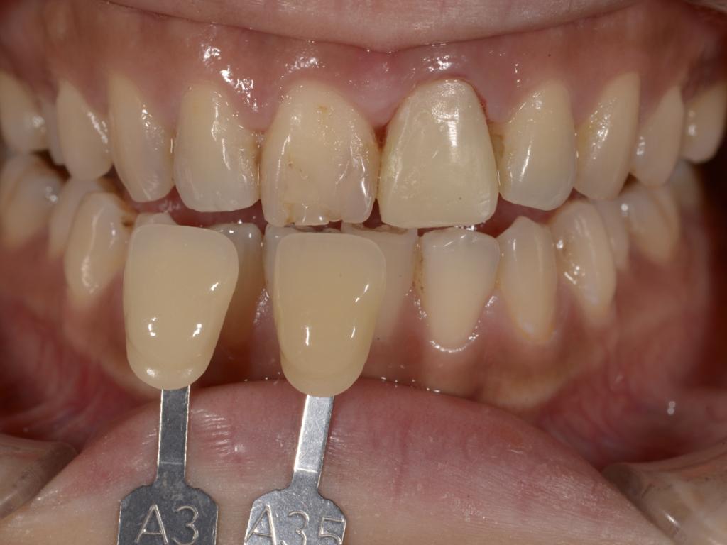 牙齒美白前