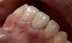假牙太長,全瓷冠合併矯正治療