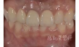 假牙邊緣牙齦變黑---全瓷冠