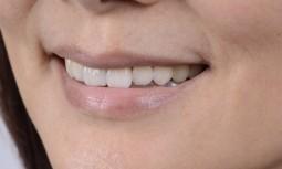 牙齒顏色變黃斑駁,排列不整齊---全瓷冠治療