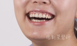 假牙歪斜,牙齦萎縮,牙齦變黑---全瓷冠合併牙齦整形術