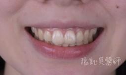 根管治療齒色變暗---全瓷冠合併齒內美白