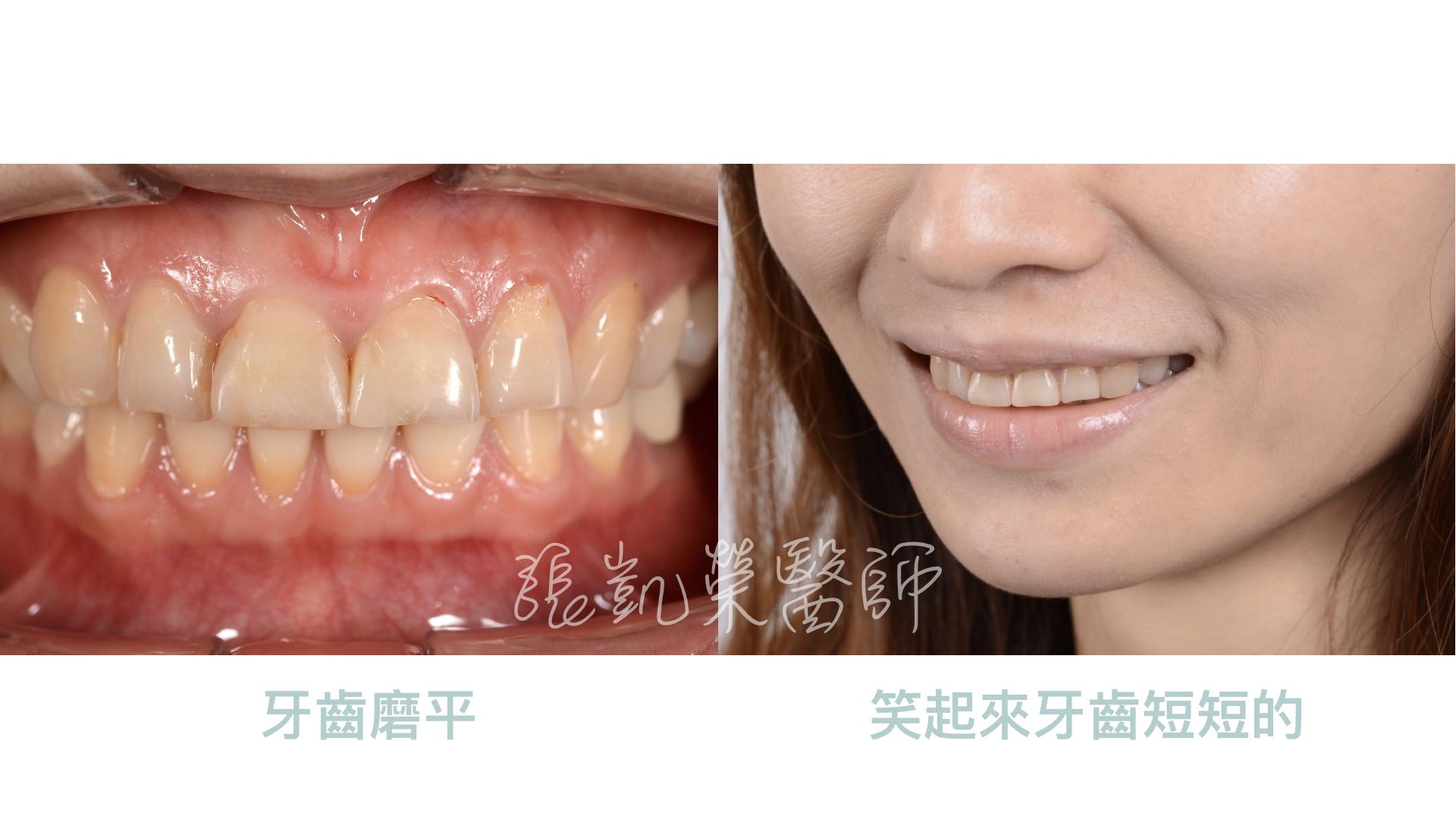 磨牙、牙齒短