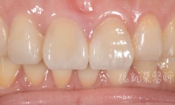 我牙齒磨的短短的,怎麼辦呢?