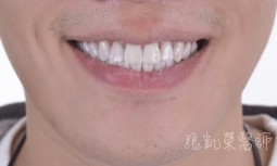 牙齒很黃多顆嚴重蛀牙---全瓷冠併全瓷貼片