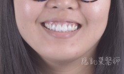 根管治療後牙齒變黃---全瓷冠合併齒內美白