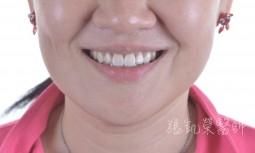 牙齒大小不均---矯正後合併全瓷冠貼片治療