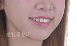 牙齒多處樹脂填補變色---全瓷貼片合併美白治療