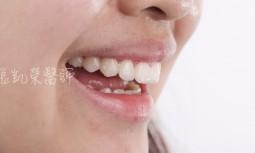 多處齒縫牙齒偏小---全瓷貼片修復
