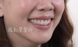 笑齦太多牙齒內縮---全瓷貼片合併牙齦整形術