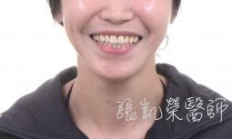 牙齒磨損---全瓷貼片合併牙齦整形