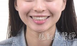 矯正微笑重建---全瓷冠合併全口美白