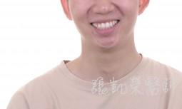 牙齒美白---矯正後牙齒亮白處理