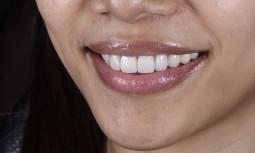牙冠邊緣變黑,門牙無微笑曲線---全瓷冠全瓷貼片合併全口美白