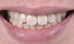 外傷門牙斷裂---微創貼片修復