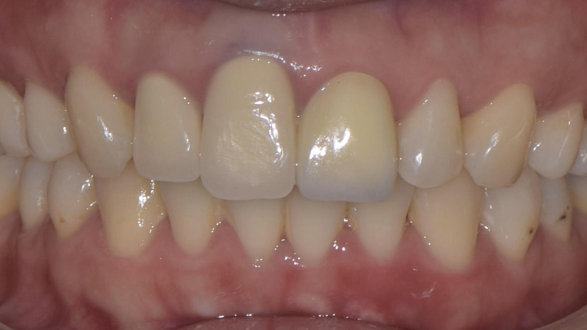 牙齦萎縮,假牙過長
