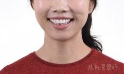 牙齒有點凸,顏色不好看---全瓷貼片矯正排列與增進亮白