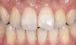 牙齒斷裂怎麼辦?---顯微貼片微創修復