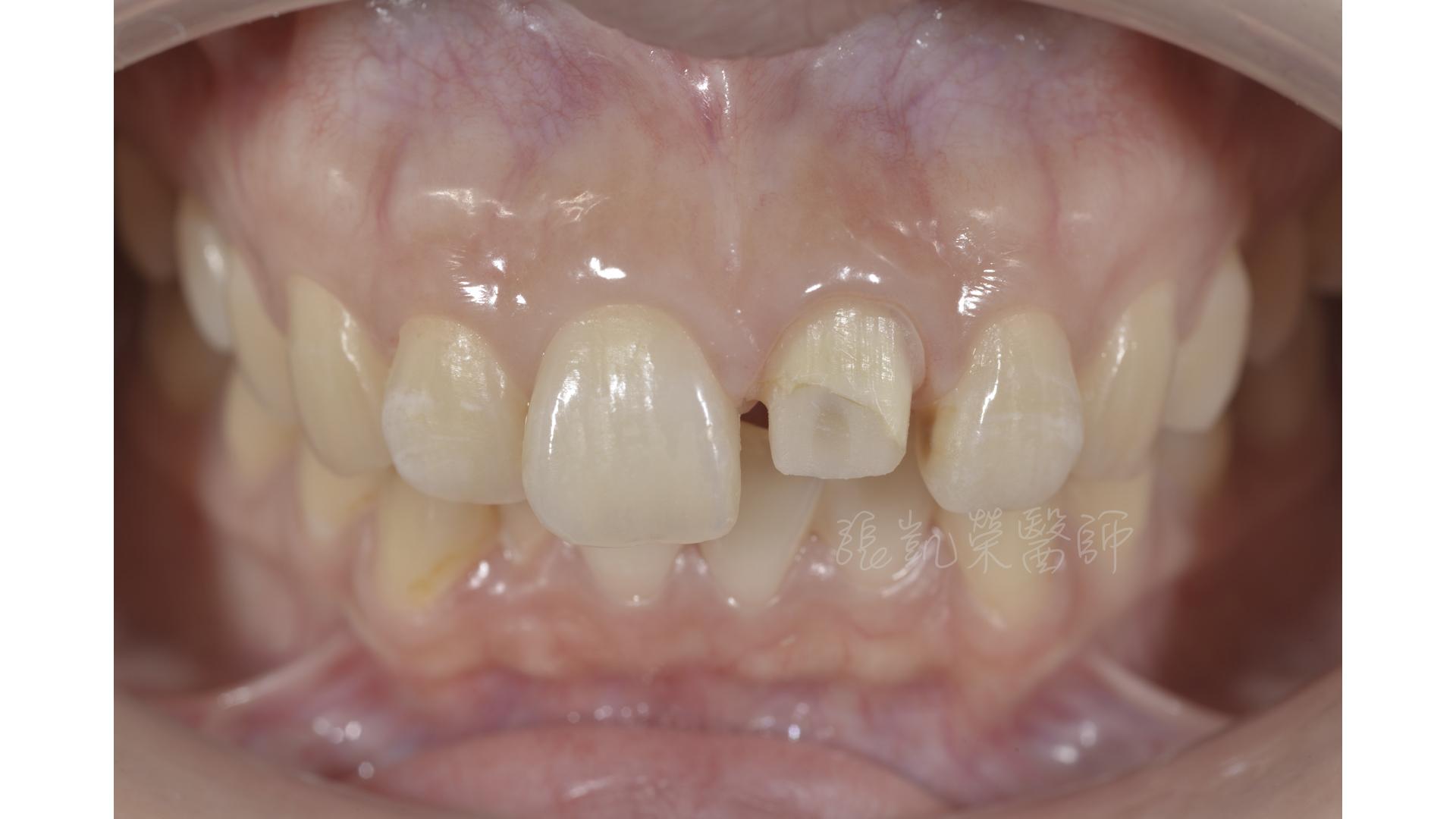 齒內美白與碳纖維柱釘治療後