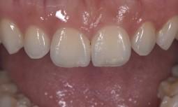 我的門牙有縫,能夠傷害牙齒最小的狀況下,把縫關起來嗎---顯微貼片治療