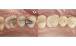醫師,我的牙齒破掉了怎麼辦?------全瓷嵌體修復大範圍蛀牙