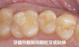 我咬起來會酸痛,無法用力咬-----利用全瓷嵌體修復牙齒斷裂痕