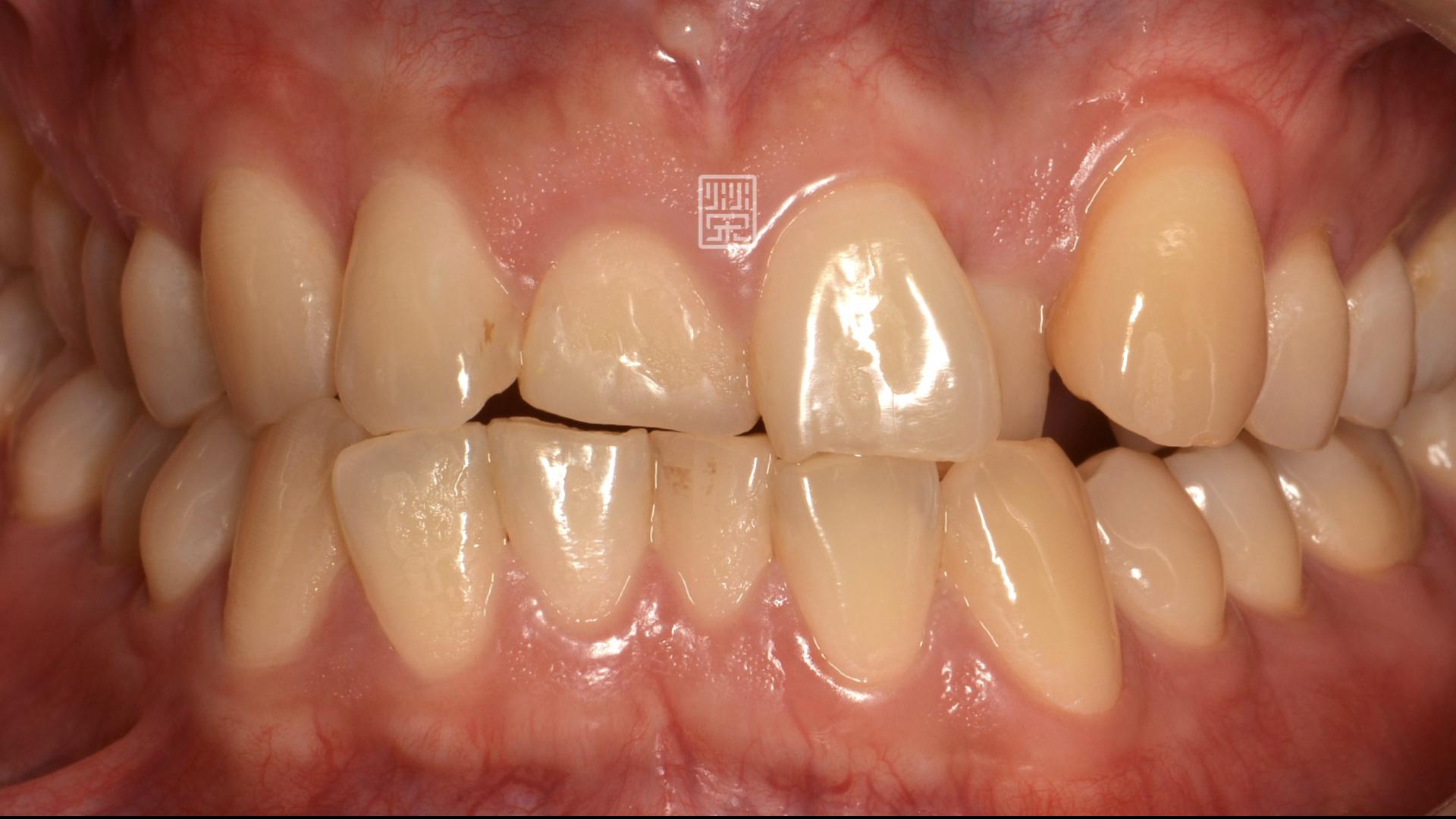 牙齒不整疾並且牙齒磨耗