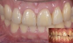 牙齒不整齊且牙齒磨短了---矯正既全瓷冠與貼片修復